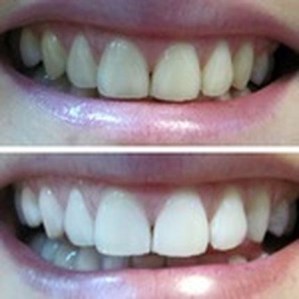 """Косметическое отбеливание зубов """"Экспресс"""""""